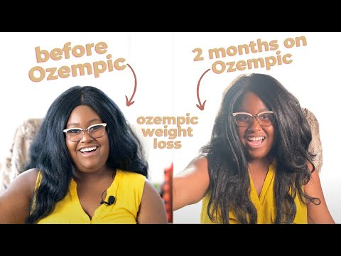 2 Months on Ozempic: weight loss before and after, side effects, injections from a patient's view